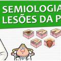 Semiologia 10 - Lesões elementares da pele (Vídeo Aula)